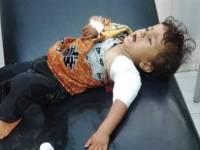 قناصة مليشيا الحوثي تصيب طفلاً غرب مأرب